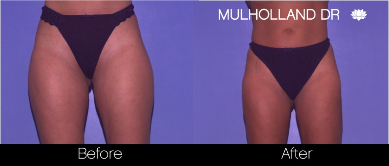 Tumescent Liposuction - Before and After Gallery – Photo 61