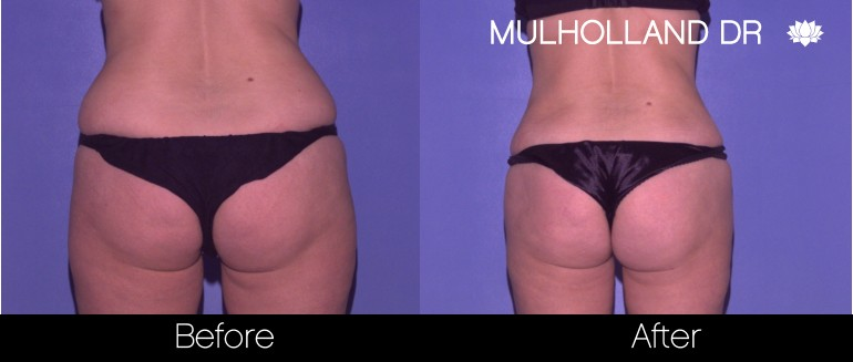 Tumescent Liposuction - Before and After Gallery – Photo 62