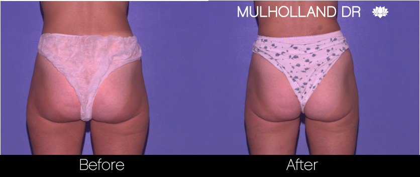 Tumescent Liposuction - Before and After Gallery – Photo 63