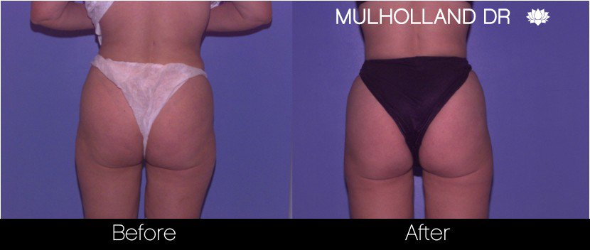 Tumescent Liposuction - Before and After Gallery – Photo 64