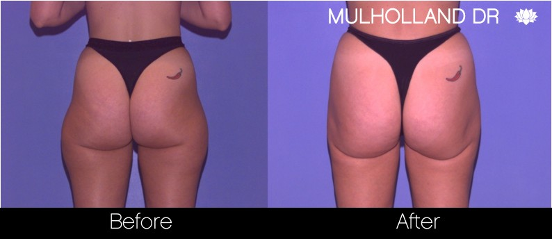 Tumescent Liposuction - Before and After Gallery – Photo 65