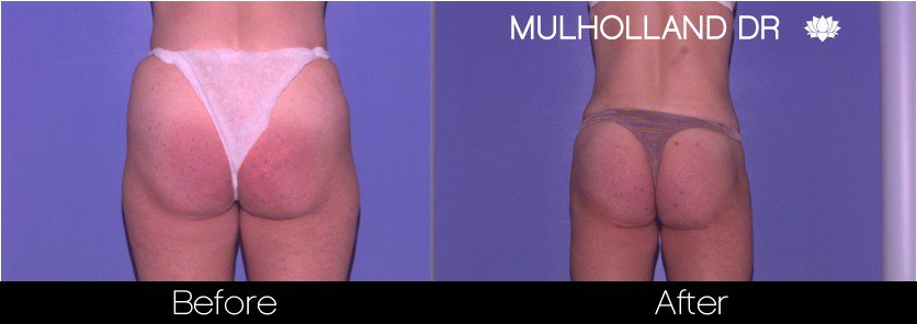 Tumescent Liposuction - Before and After Gallery – Photo 66