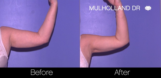 Tumescent Liposuction - Before and After Gallery – Photo 67