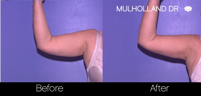 Tumescent Liposuction - Before and After Gallery – Photo 68