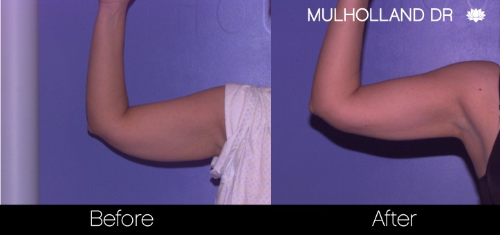 Tumescent Liposuction - Before and After Gallery – Photo 69