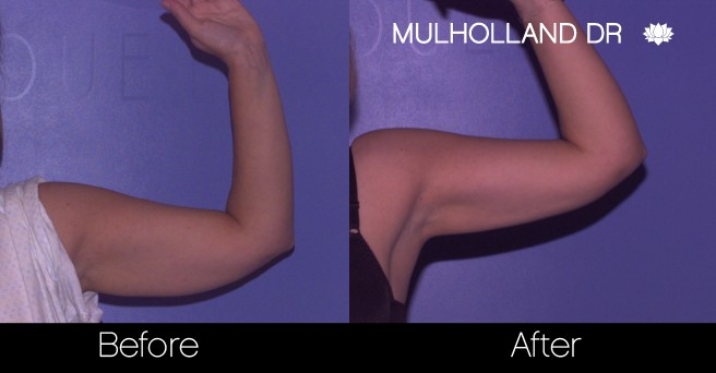 Tumescent Liposuction - Before and After Gallery – Photo 70