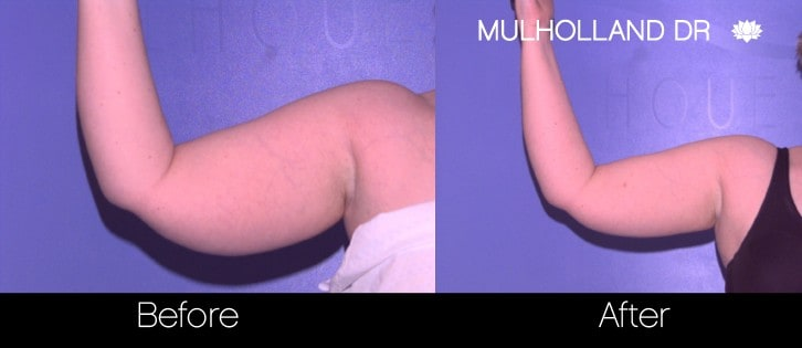 Tumescent Liposuction - Before and After Gallery – Photo 72
