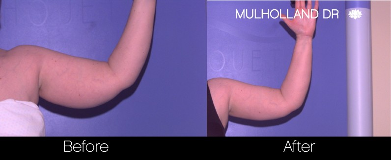 Tumescent Liposuction - Before and After Gallery – Photo 73