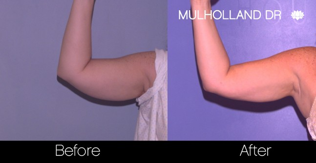Tumescent Liposuction - Before and After Gallery – Photo 71