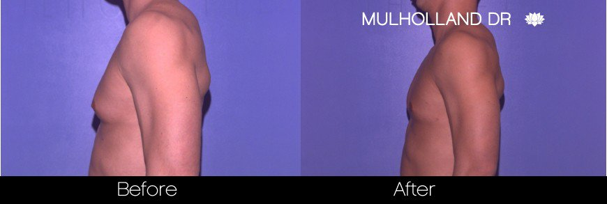 Tumescent Liposuction - Before and After Gallery – Photo 75