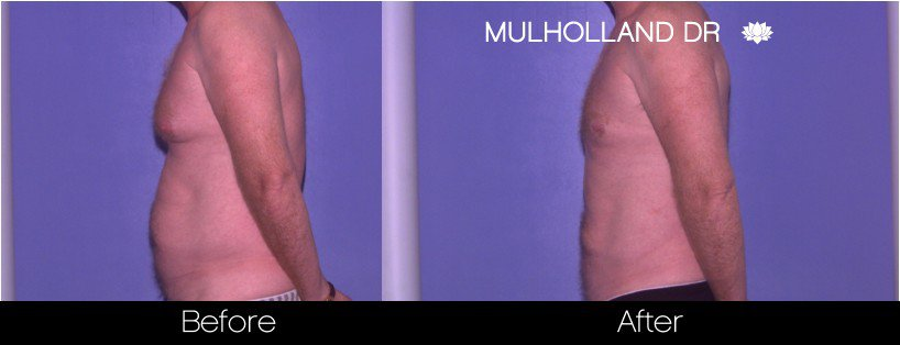 Tumescent Liposuction - Before and After Gallery – Photo 78
