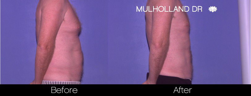 Tumescent Liposuction - Before and After Gallery – Photo 79