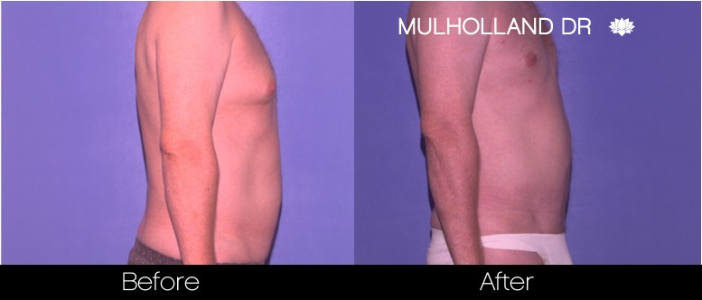 Tumescent Liposuction - Before and After Gallery – Photo 82