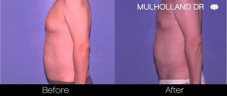 Tumescent Liposuction - Before and After Gallery – Photo 83