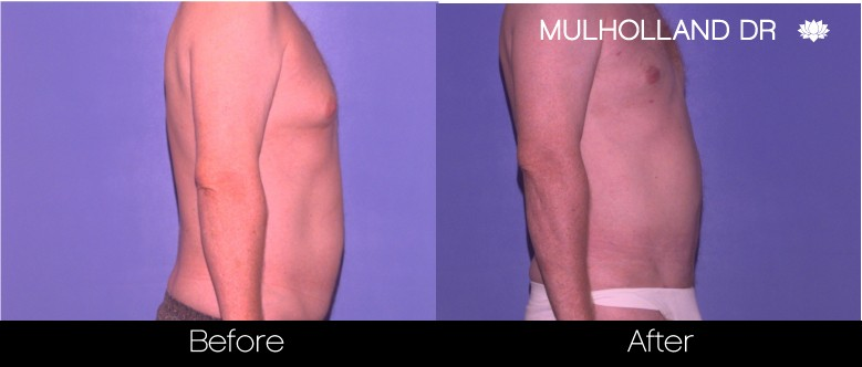 Tumescent Liposuction - Before and After Gallery – Photo 84
