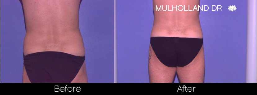 Tumescent Liposuction - Before and After Gallery – Photo 85