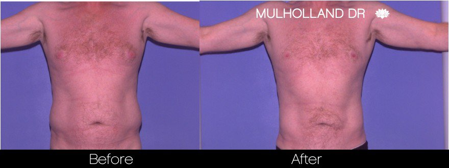 Tumescent Liposuction - Before and After Gallery – Photo 80