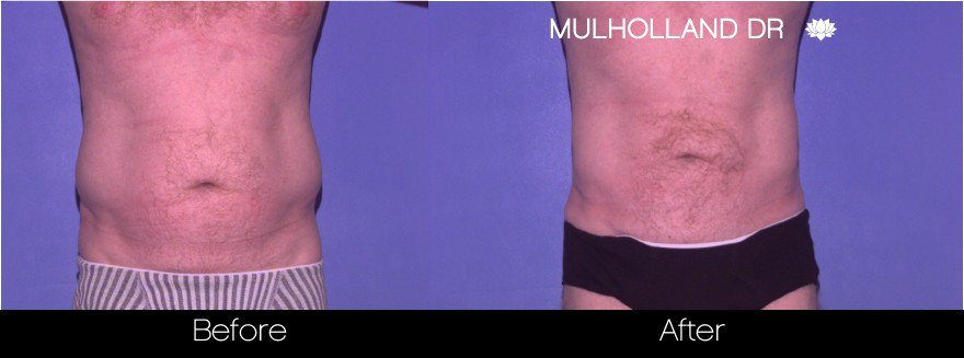 Tumescent Liposuction - Before and After Gallery – Photo 81