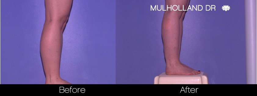 Tumescent Liposuction - Before and After Gallery – Photo 86