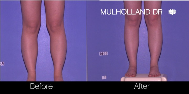 Tumescent Liposuction - Before and After Gallery – Photo 88