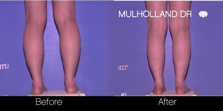 Tumescent Liposuction - Before and After Gallery – Photo 89