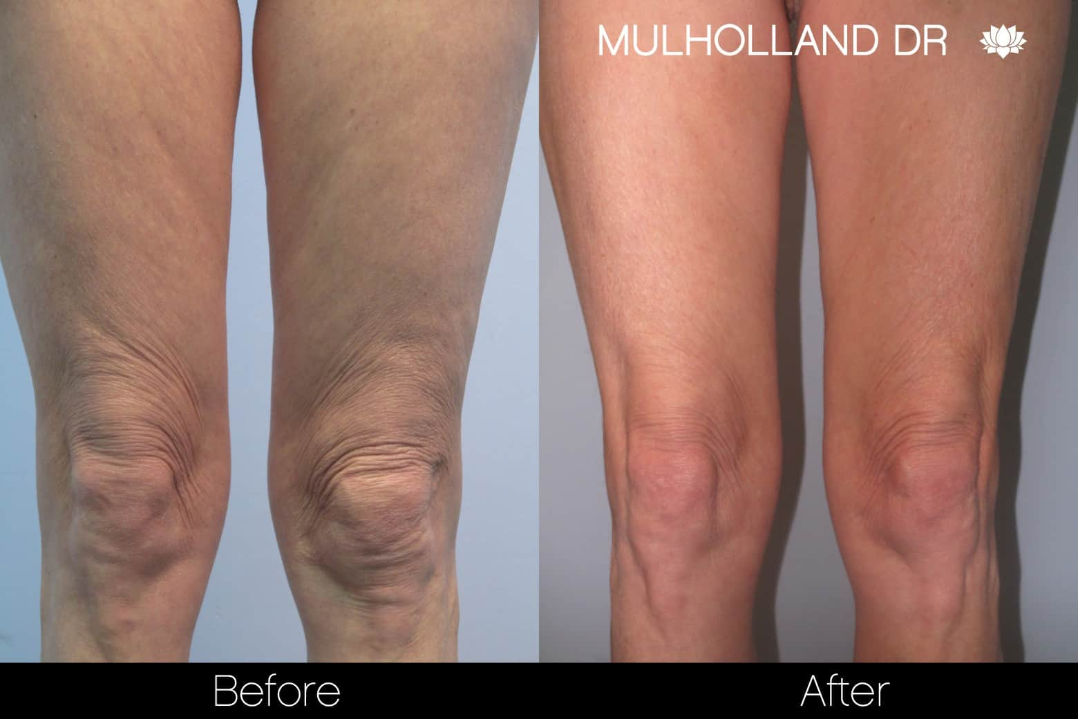 Tumescent Liposuction - Before and After Gallery – Photo 90