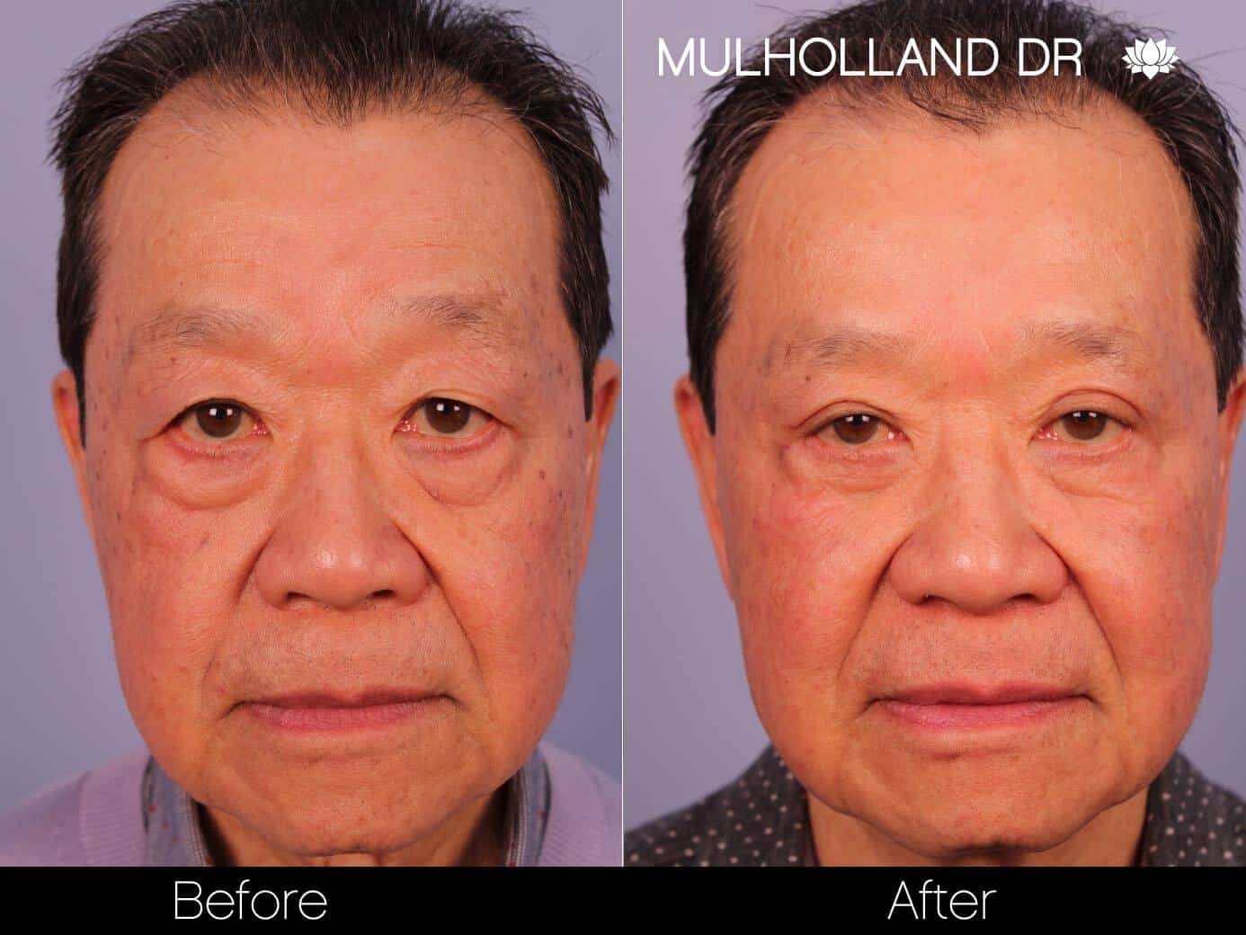 Asian Blepharoplasty - Before and After Gallery – Photo 13