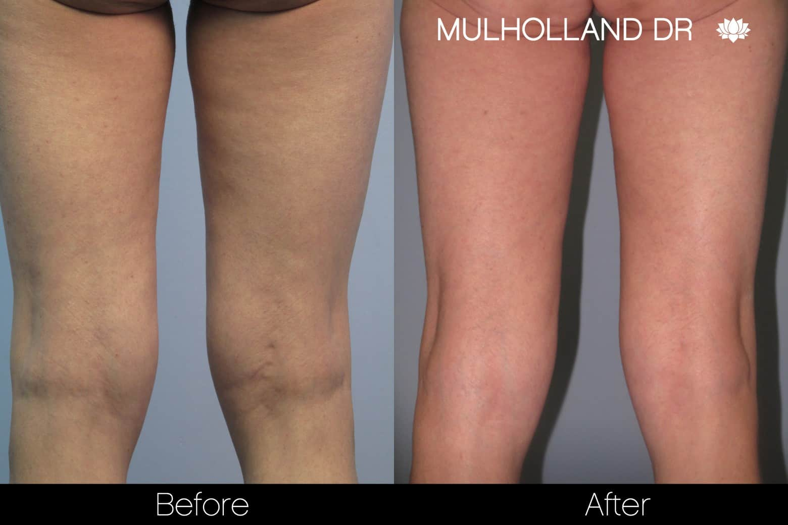 Tumescent Liposuction - Before and After Gallery – Photo 91