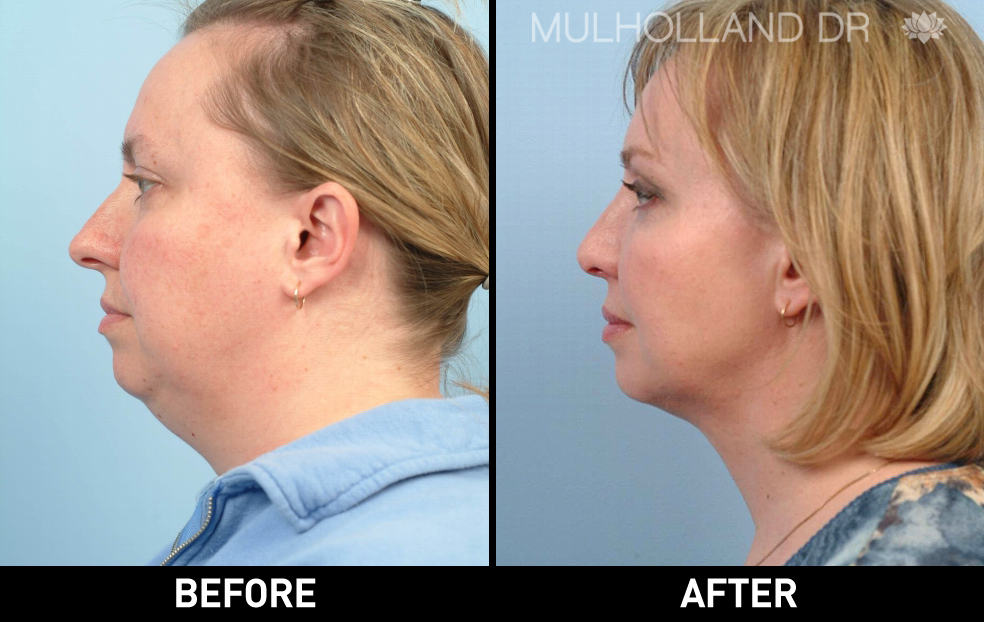 Tumescent Liposuction - Before and After Gallery – Photo 92