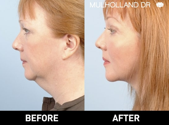 Tumescent Liposuction - Before and After Gallery – Photo 94