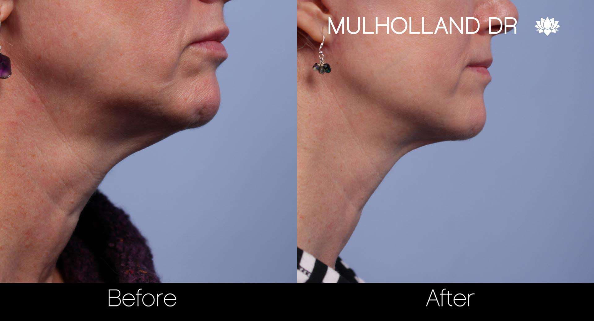 Tumescent Liposuction - Before and After Gallery – Photo 99