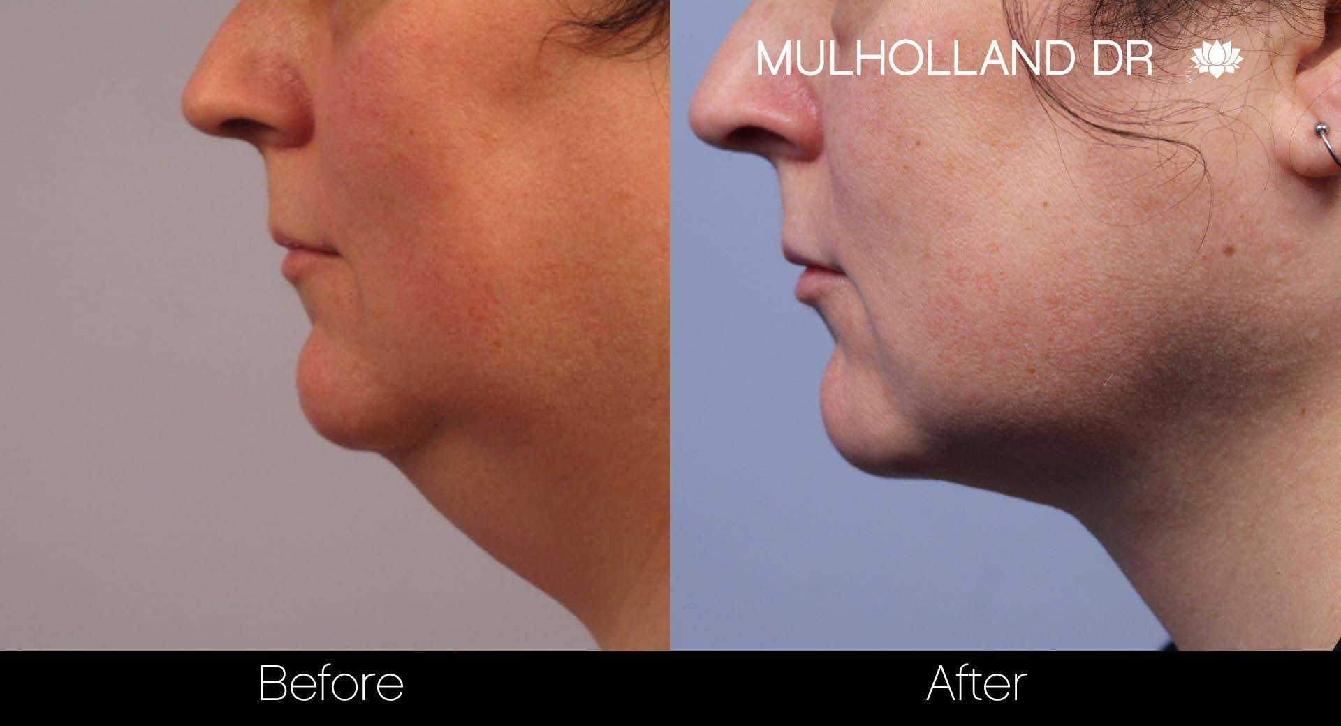 Tumescent Liposuction - Before and After Gallery – Photo 100