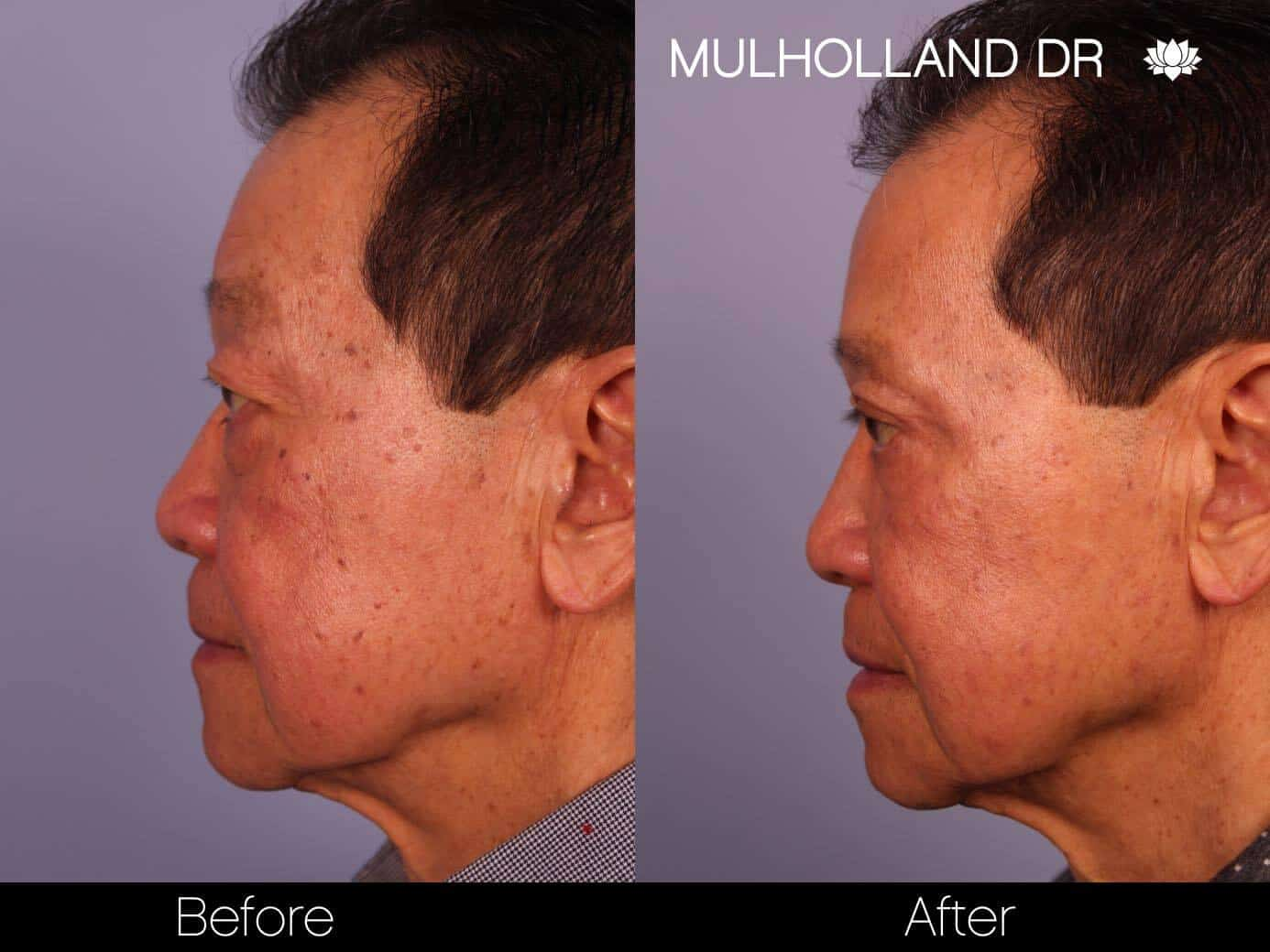 Asian Blepharoplasty - Before and After Gallery – Photo 14