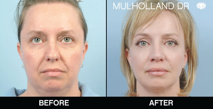 Facial Fat Transfer - Before and After Gallery – Photo 11
