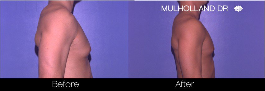 Gynecomastia Surgery (Male Breast Reduction) - Before and After Gallery – Photo 12