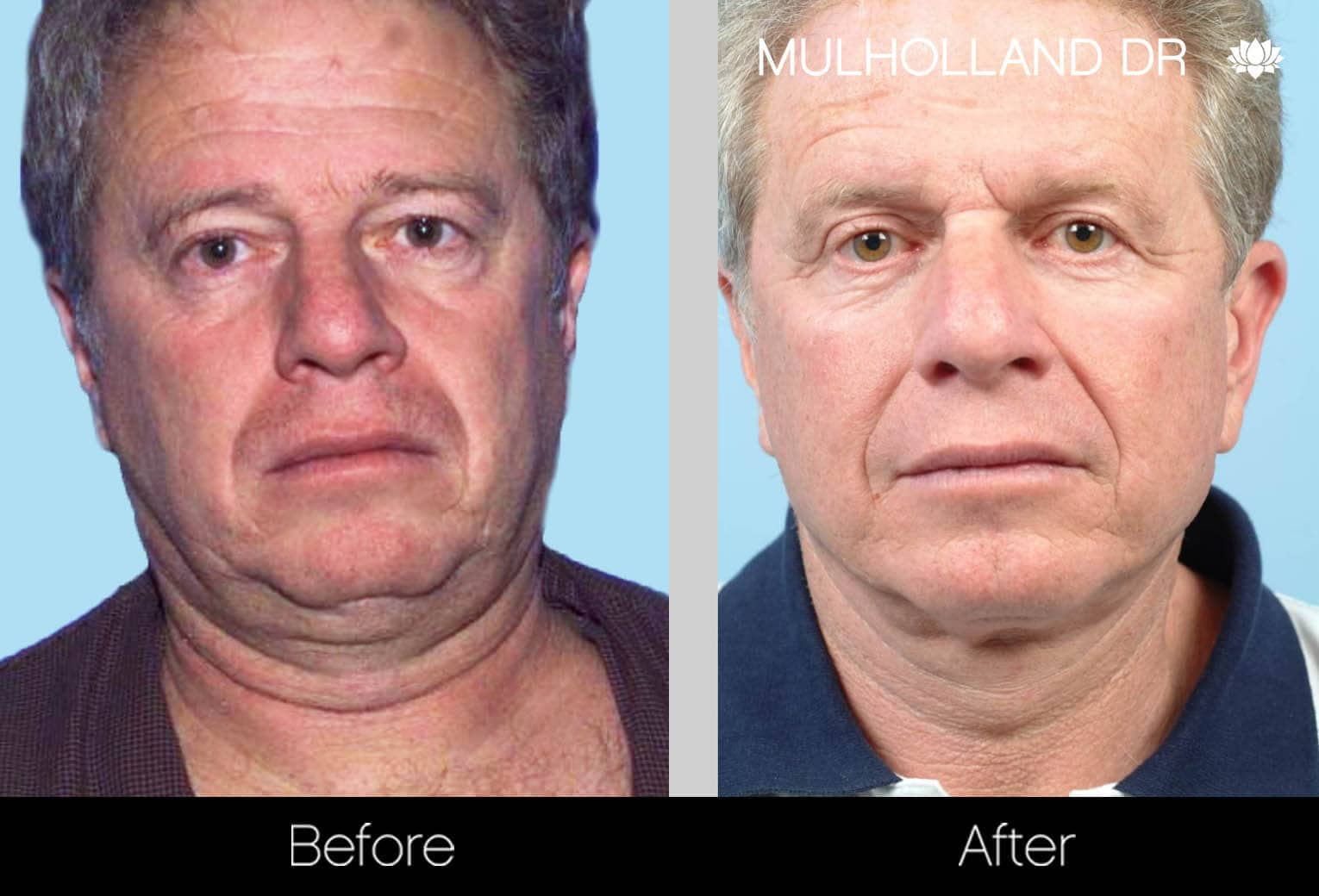 Neck Lift- Before and After Gallery – Photo 101