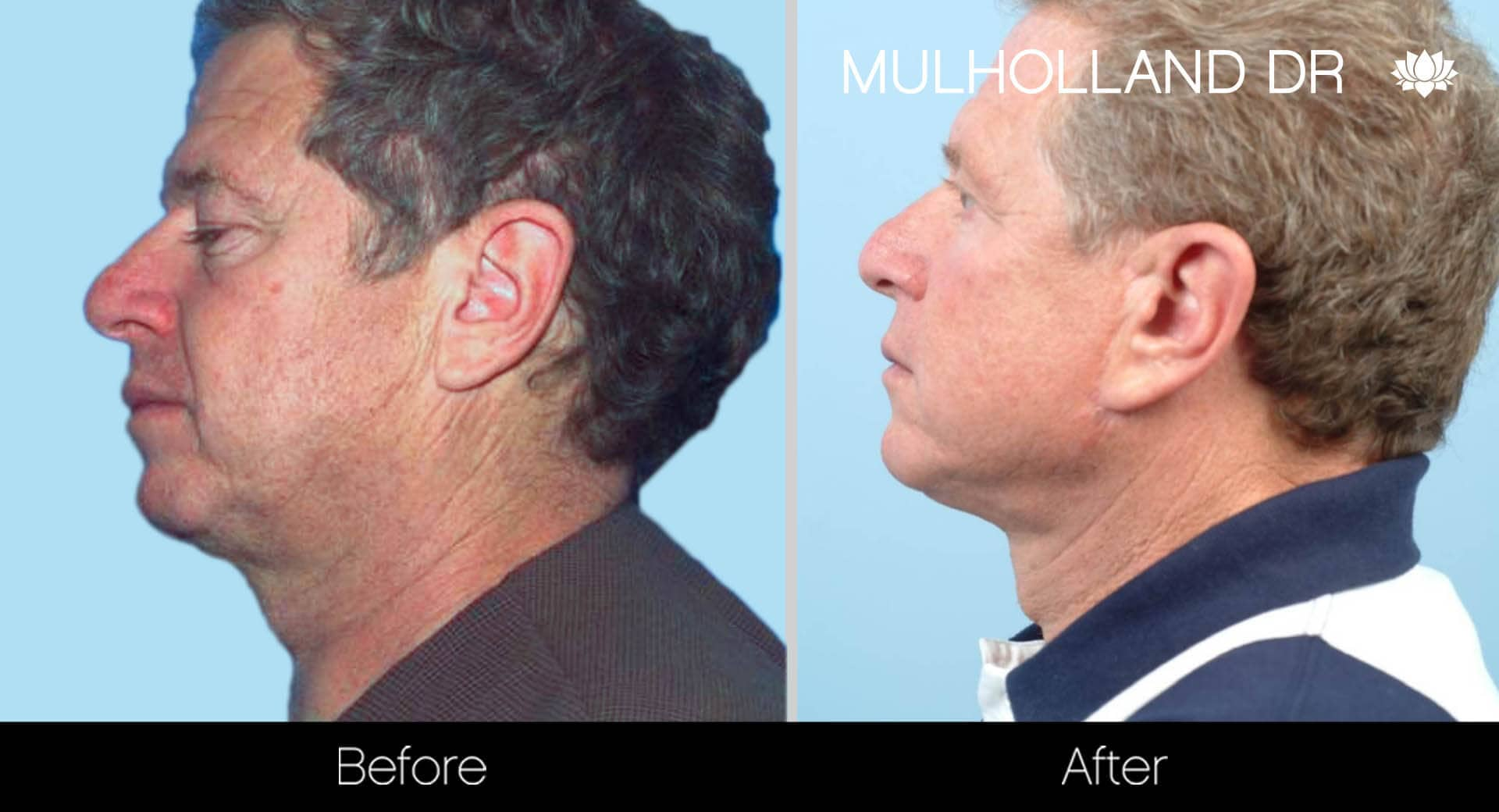 Neck Lift- Before and After Gallery – Photo 102