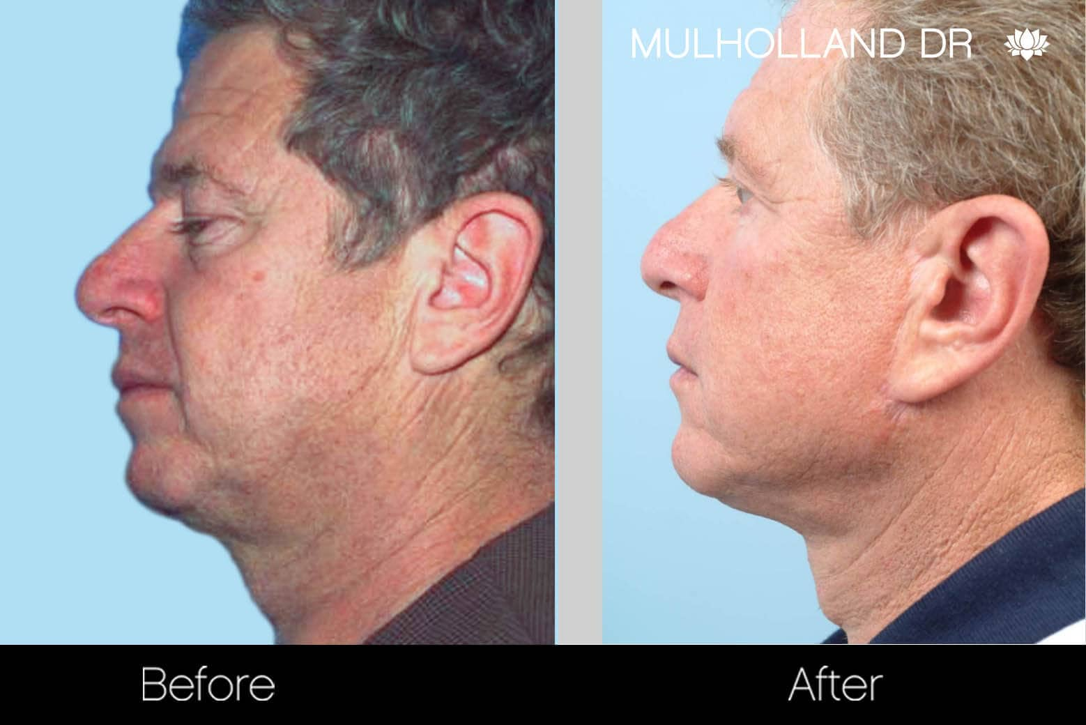 Neck Lift- Before and After Gallery – Photo 103
