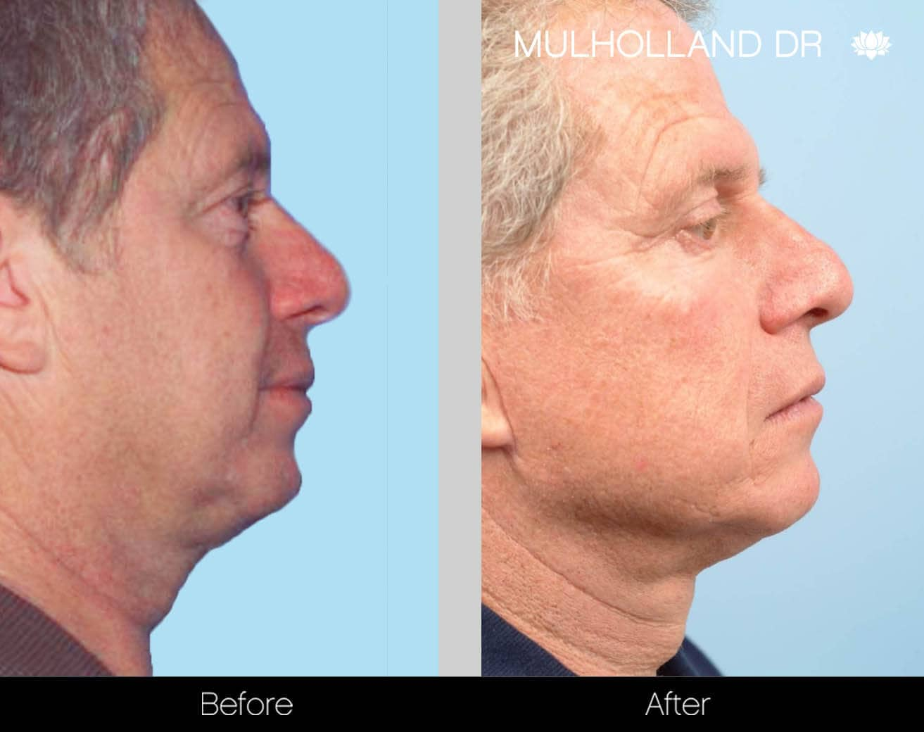 Neck Lift- Before and After Gallery – Photo 104