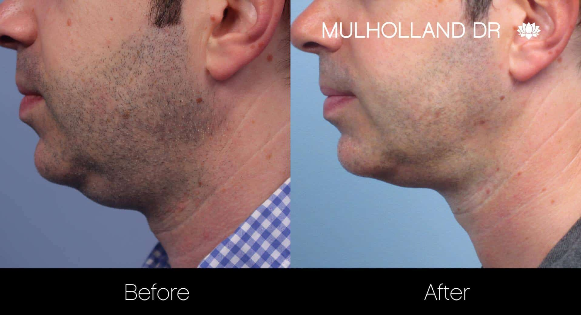 Neck Lift- Before and After Gallery – Photo 107