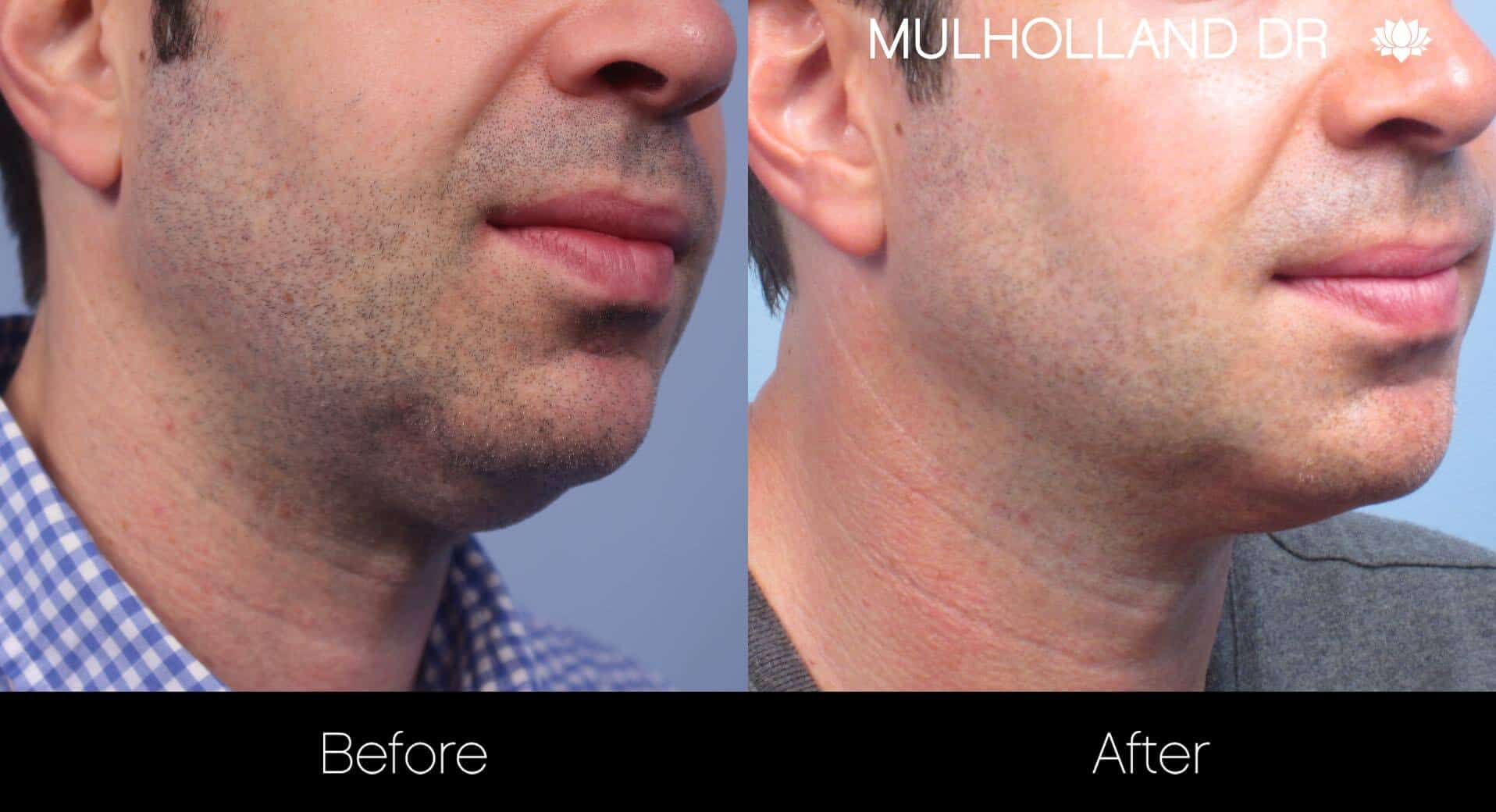 Neck Lift- Before and After Gallery – Photo 108