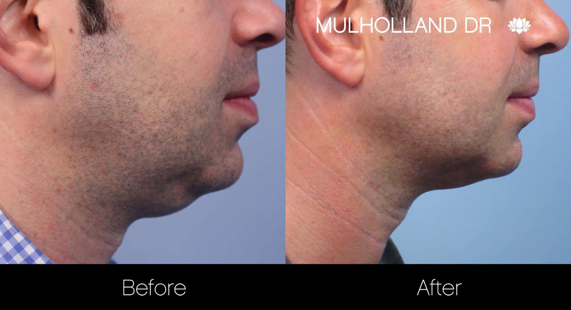 Neck Lift- Before and After Gallery – Photo 109
