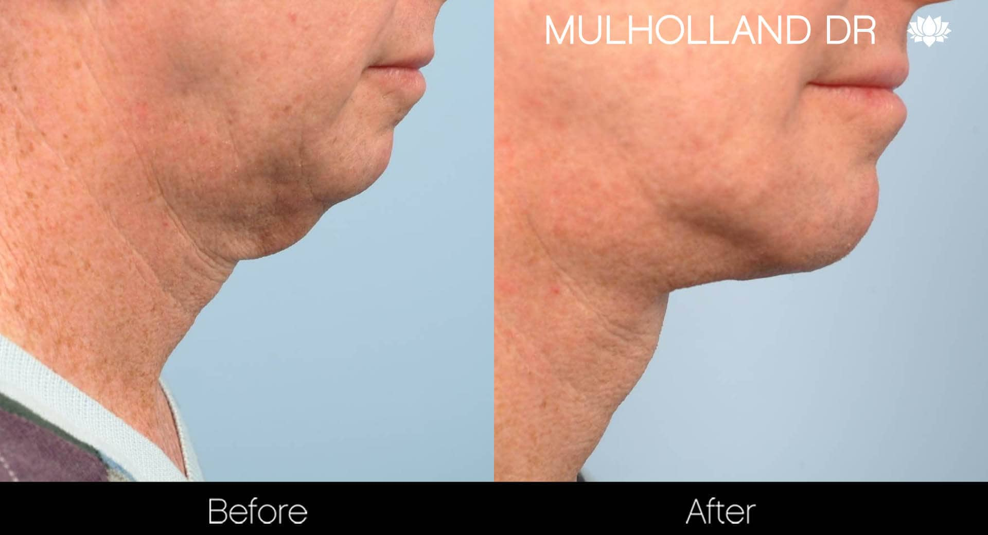 Neck Lift- Before and After Gallery – Photo 110
