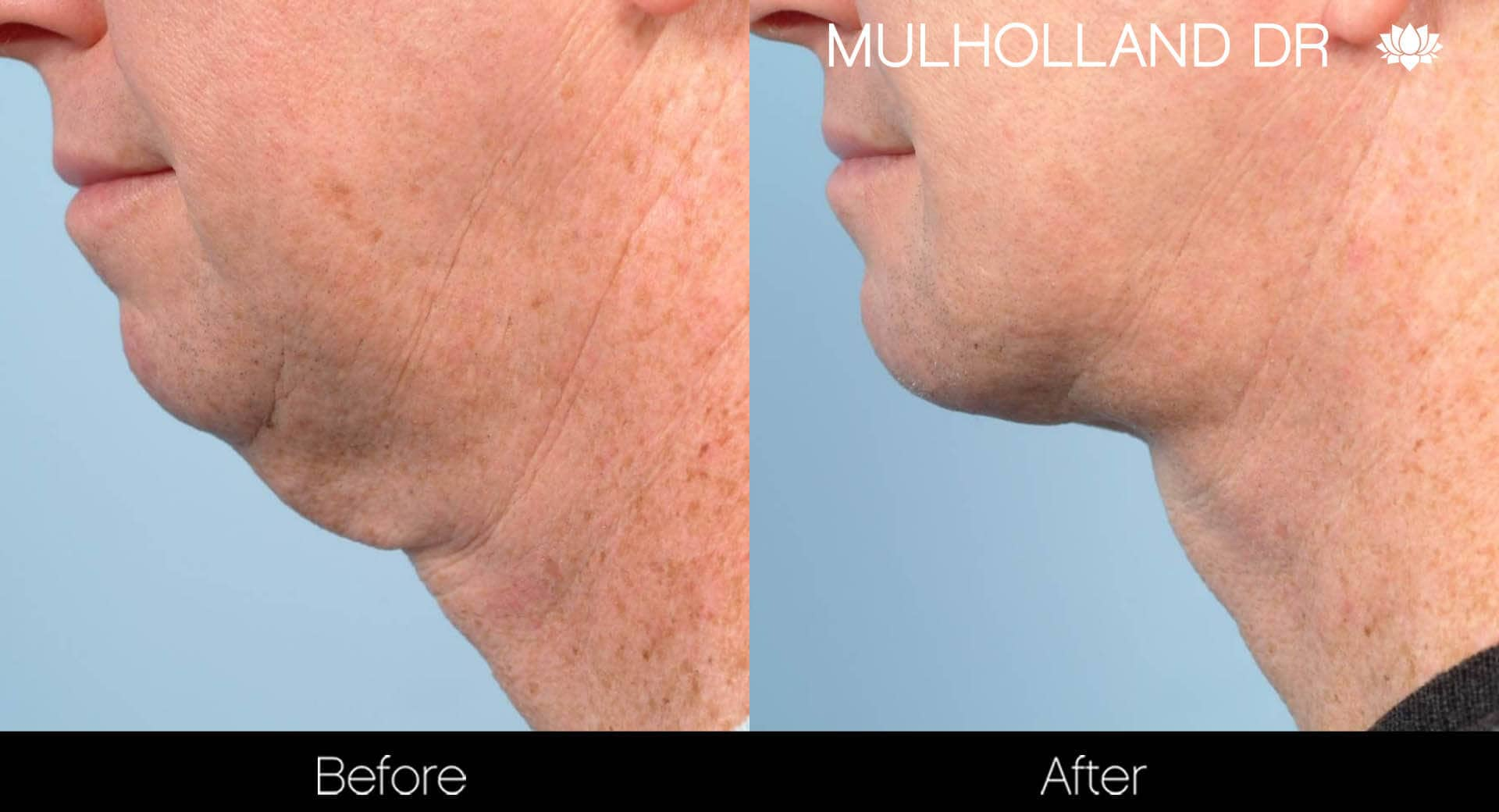 Neck Lift- Before and After Gallery – Photo 111