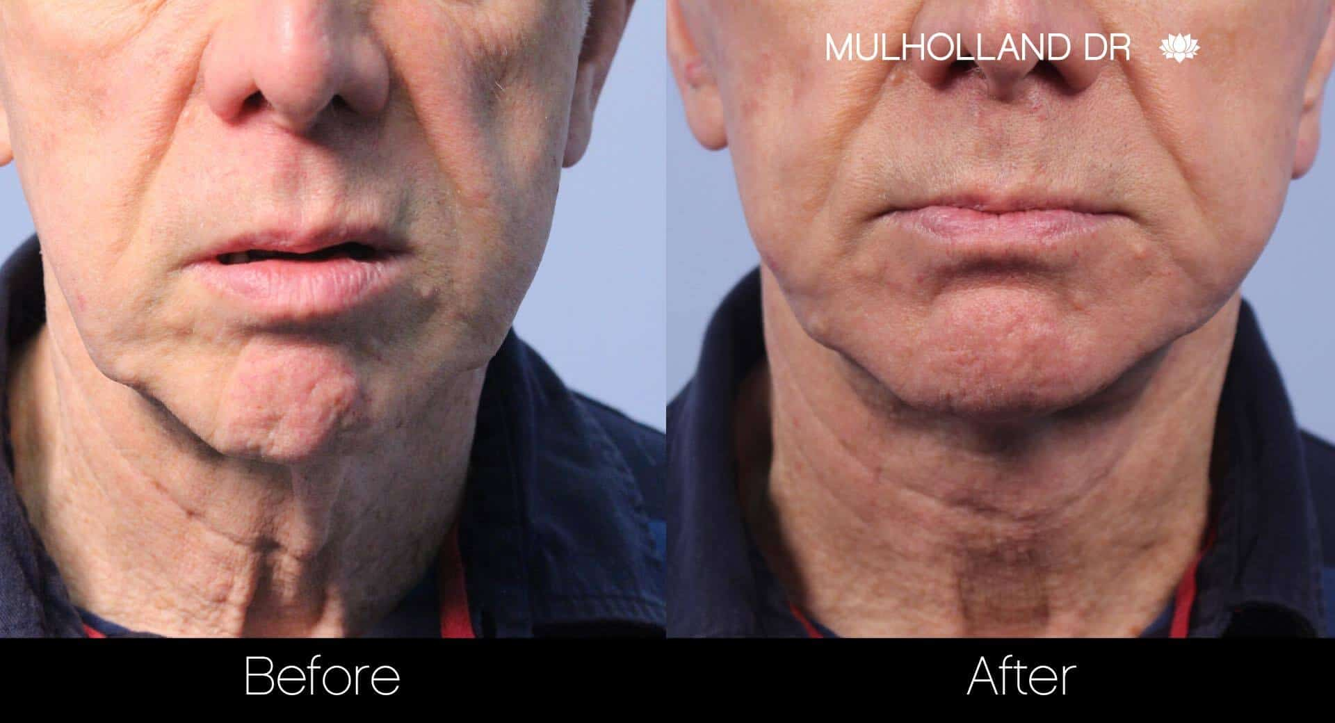 Neck Lift- Before and After Gallery – Photo 113