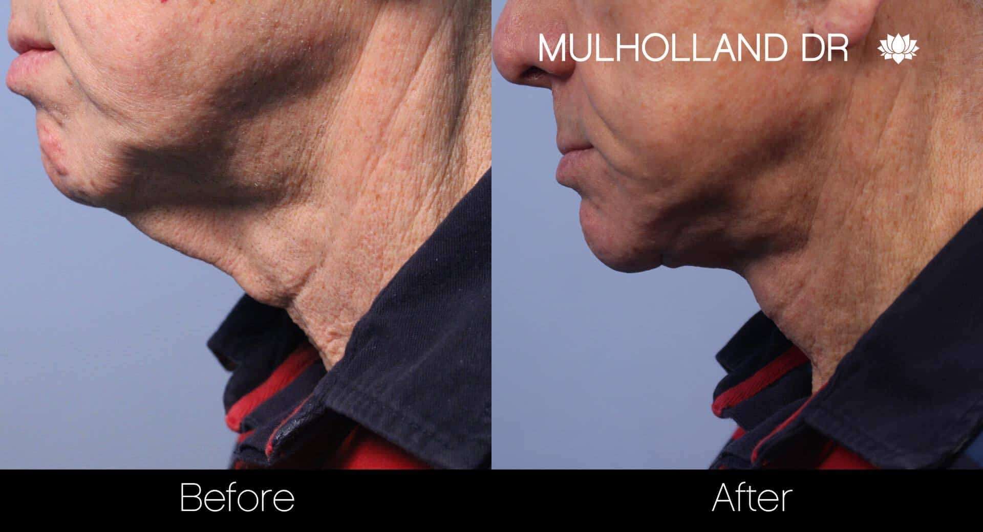 Neck Lift- Before and After Gallery – Photo 115