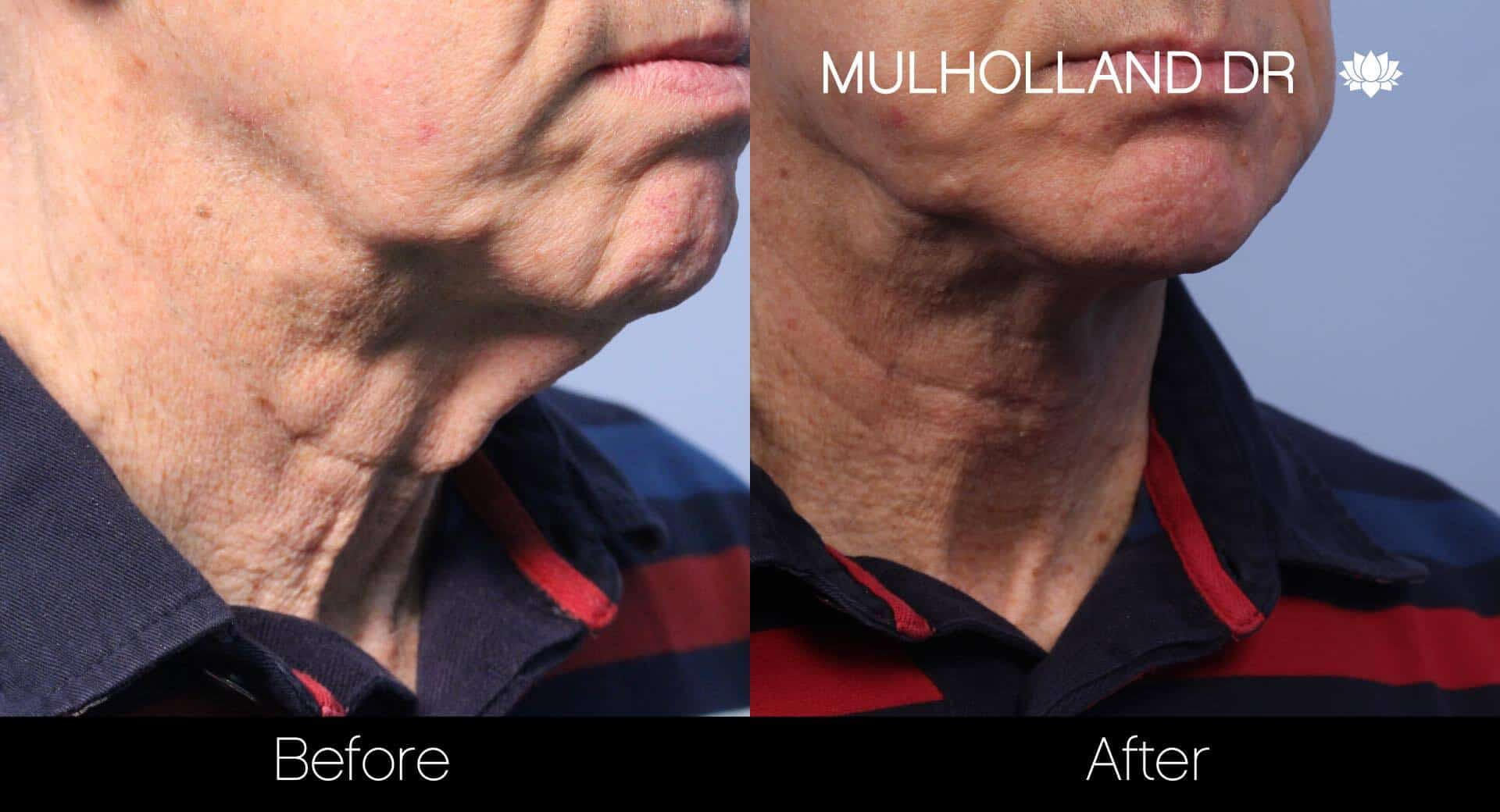Neck Lift- Before and After Gallery – Photo 116