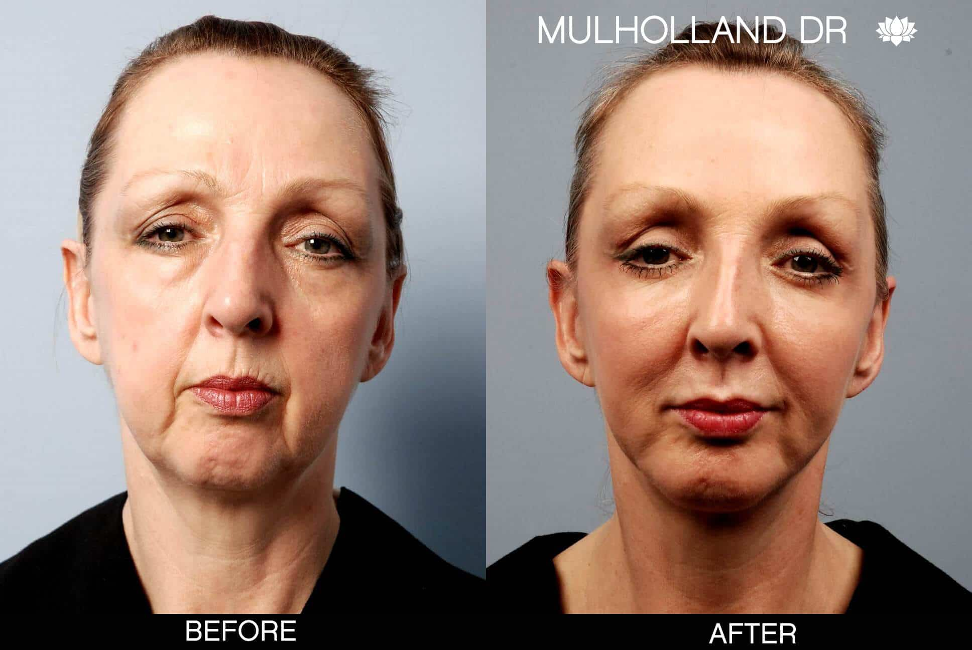 Neck Lift- Before and After Gallery – Photo 12