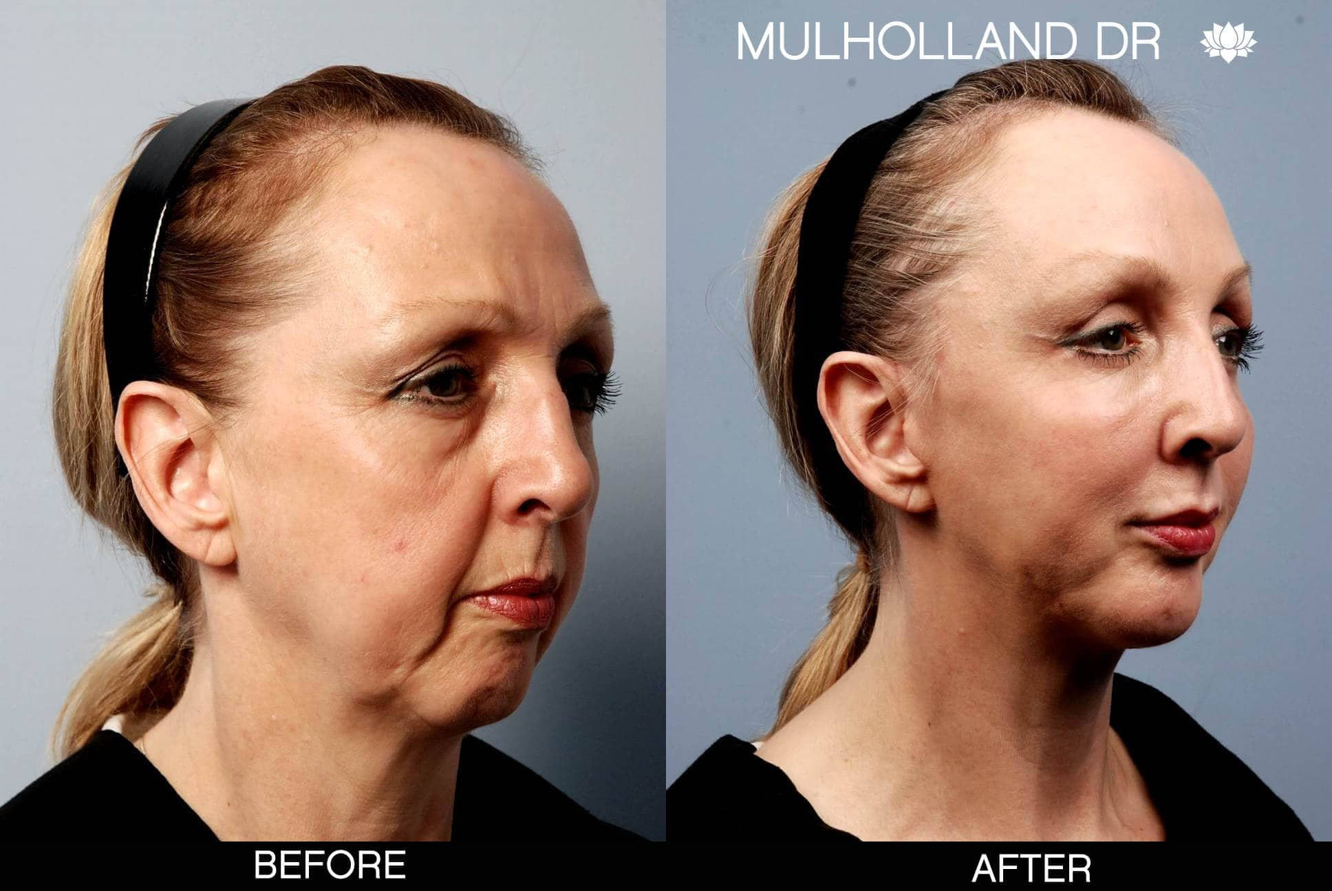 Neck Lift- Before and After Gallery – Photo 13