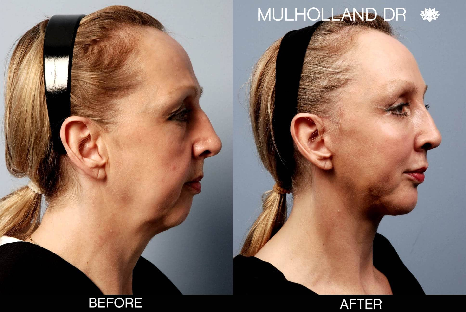 Neck Lift- Before and After Gallery – Photo 15
